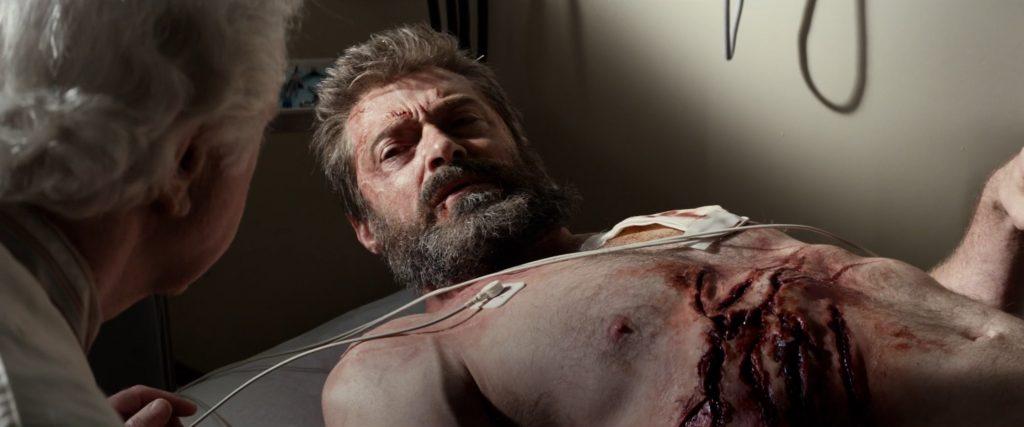 Logan ferido